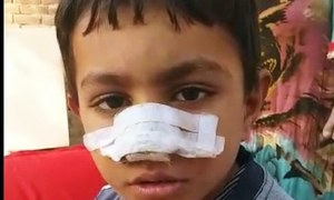Khanewal landlord slashes 7-year-old's nose 'for stealing sugarcane'