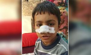 زمیندار نے چوری کے الزام میں 7 سالہ بچے کی ناک کاٹ دی