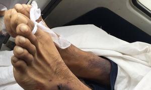راولپنڈی: میڈیکل اسٹاف کے تشدد سے منشیات کا عادی نوجوان جاں بحق