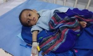 تھر: غذائی قلت اور وائرل انفیکشن سے مزید 9 بچے جاں بحق