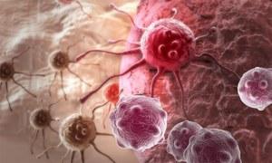 کینسر جیسے جان لیوا مرض کی 22 ابتدائی نشانیاں