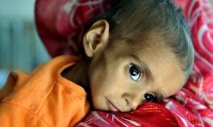 'کوئٹہ کے مضافات میں 40 سے65 فیصد بچے غذائی قلت کا شکار'