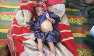 Up to 65% children acutely malnourished in parts of Quetta: Unicef official