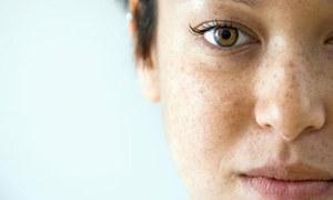 سردی میں جسم اور جلد کا کیسے خیال رکھیں؟