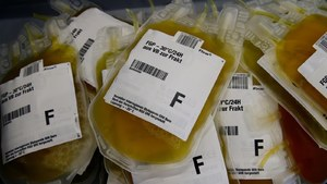 سندھ نے 3 ہسپتالوں کو کورونا مریضوں پر پلازما تھراپی کے ٹرائل کی اجازت دے دی