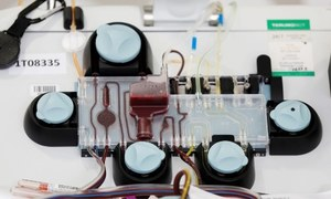 امریکا نے بلڈ پلازما سے کورونا کے مریضوں کے علاج کی منظوری دے دی