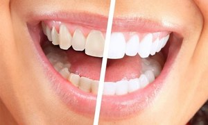 دانتوں کو موتیوں جیسے سفید بنانے میں مددگار قدرتی ٹوٹکے