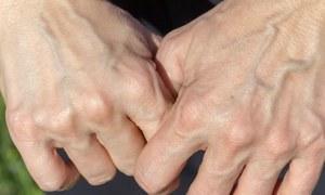 ہاتھوں کی رگیں کچھ افراد میں نمایاں اور دیگر میں کیوں نہیں ہوتیں؟